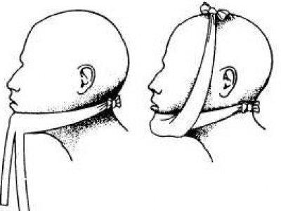 Перевязки при переломи нижней челюсти
