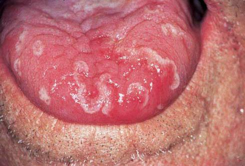 хронический запах изо рта