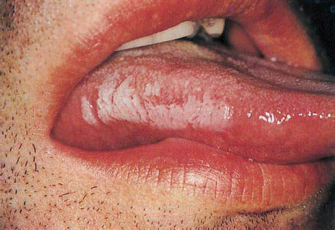 химический запах изо рта ребенка