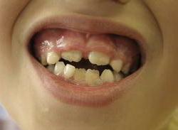Болезни горла и щитовидная железа
