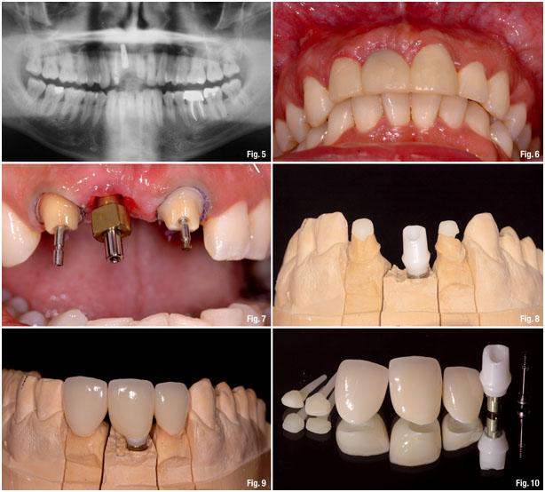 Удаление зуба реабилитация